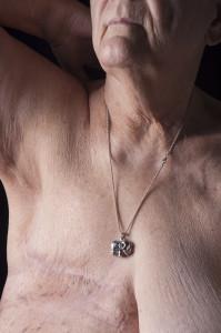 Breast Cancer I